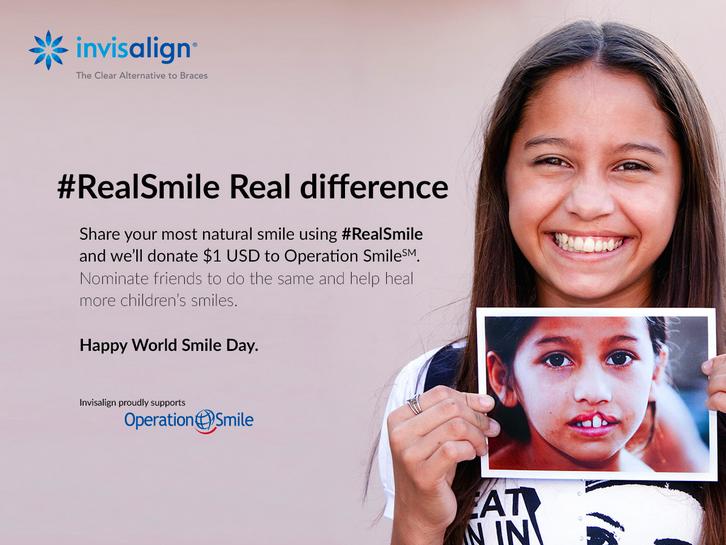 Invisalign #RealSmile Campaign